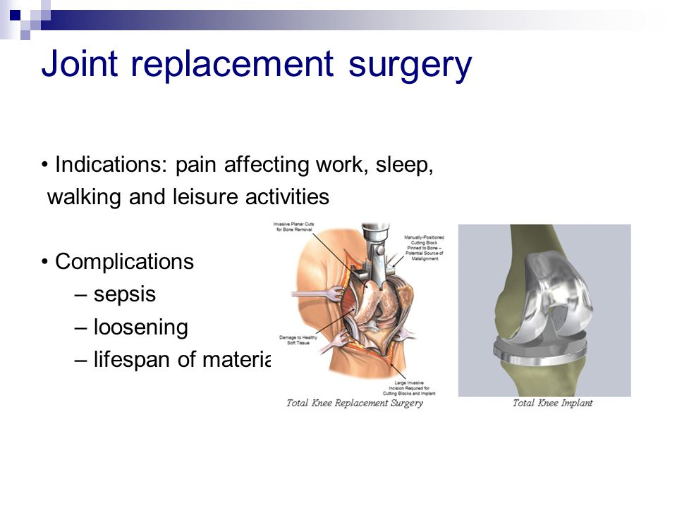 Joint replacement surgery Indications: pain affecting work, sleep, walking and leisure activities Complications – sepsis – loosening – lifespan of mat