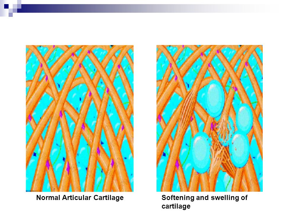 Normal Articular Cartilage Softening and swelling of cartilage
