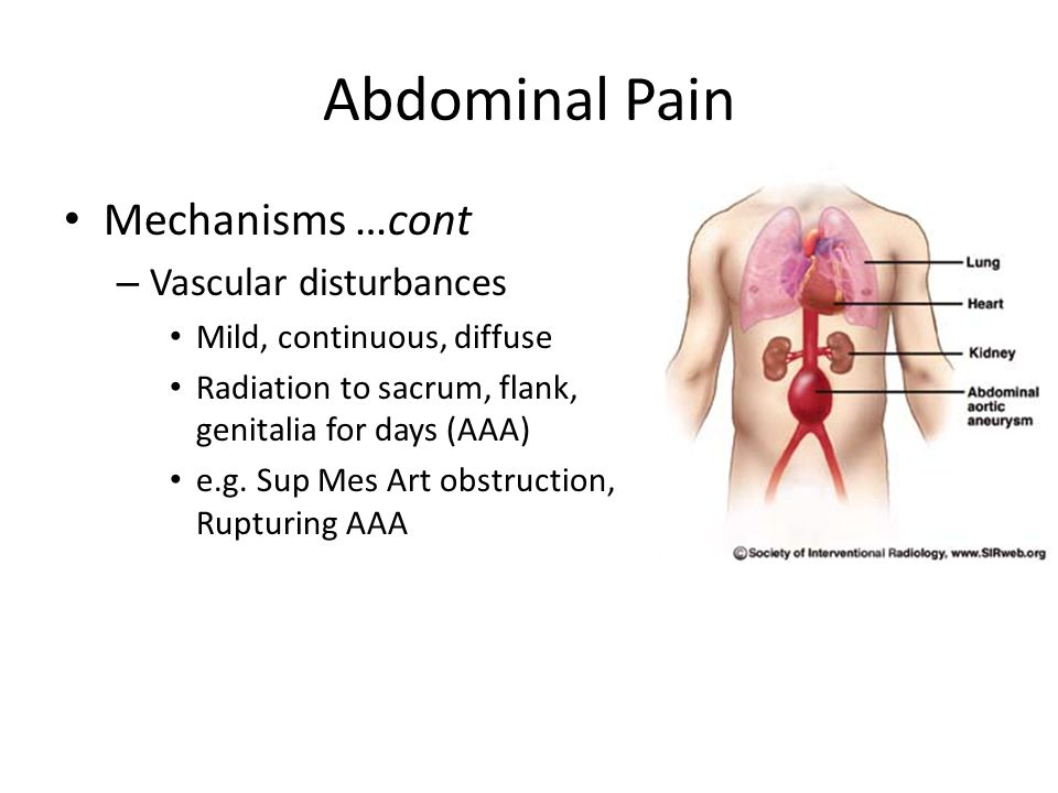 Abdominal Pain Mechanisms …cont – Vascular disturbances Mild, continuous, diffuse Radiation to sacrum, flank, genitalia for days (AAA) e.g.