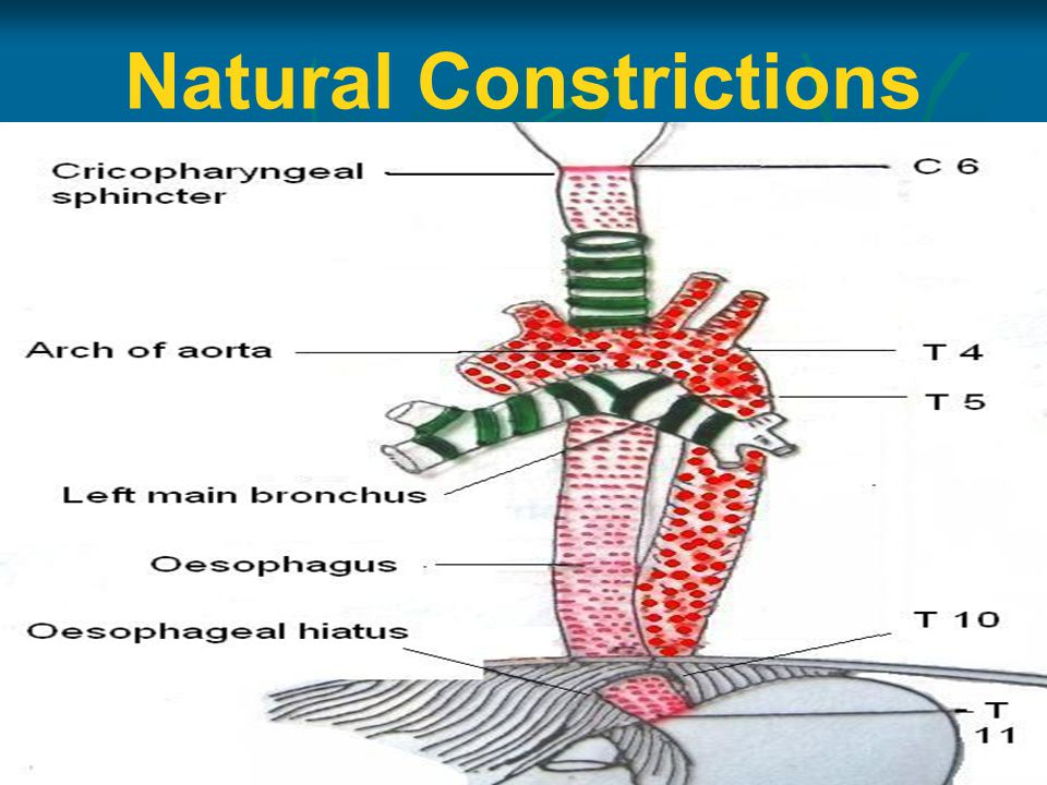 Natural Constrictions
