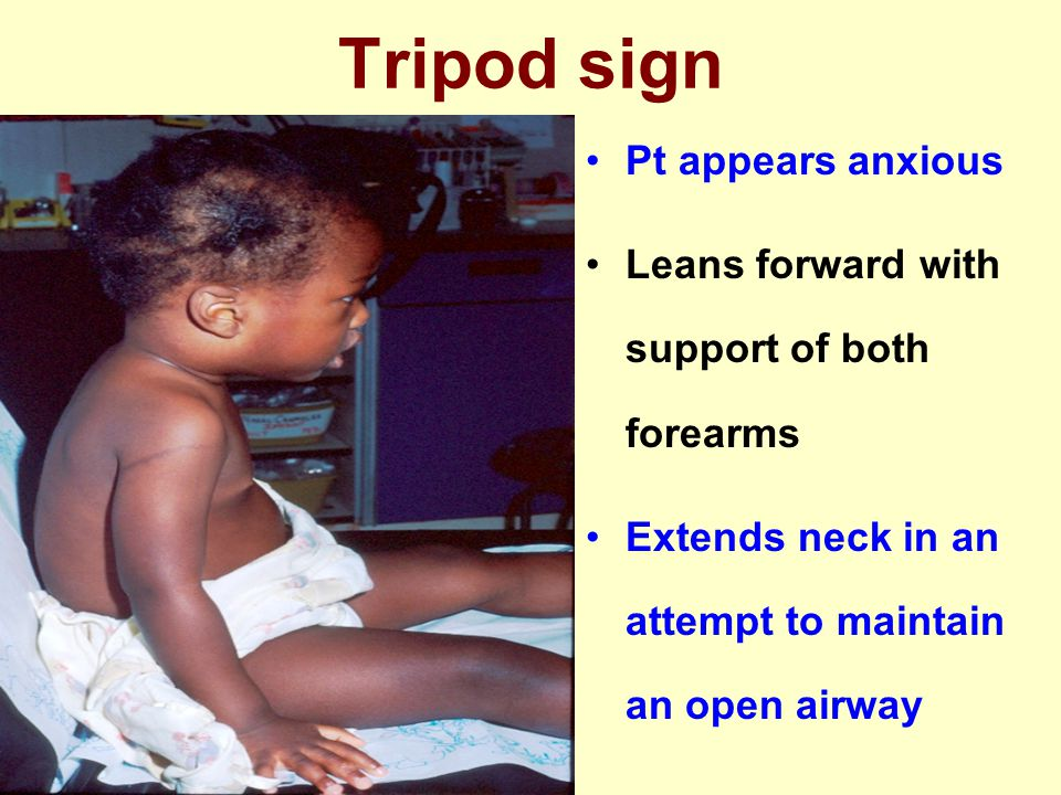 Tripod sign Pt appears anxious Leans forward with support of both forearms Extends neck in an attempt to maintain an open airway