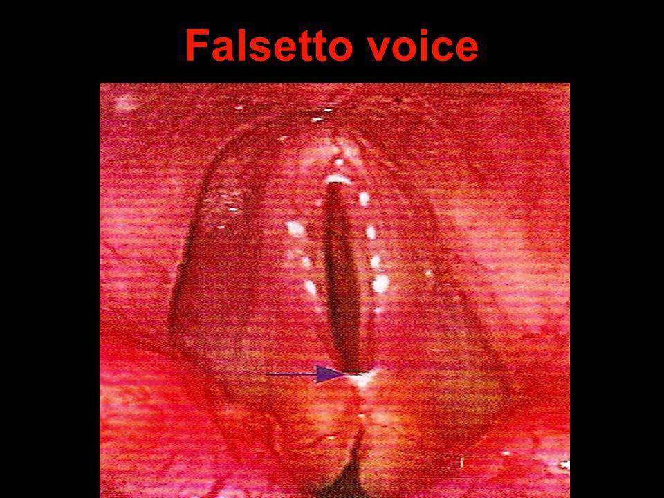Falsetto voice