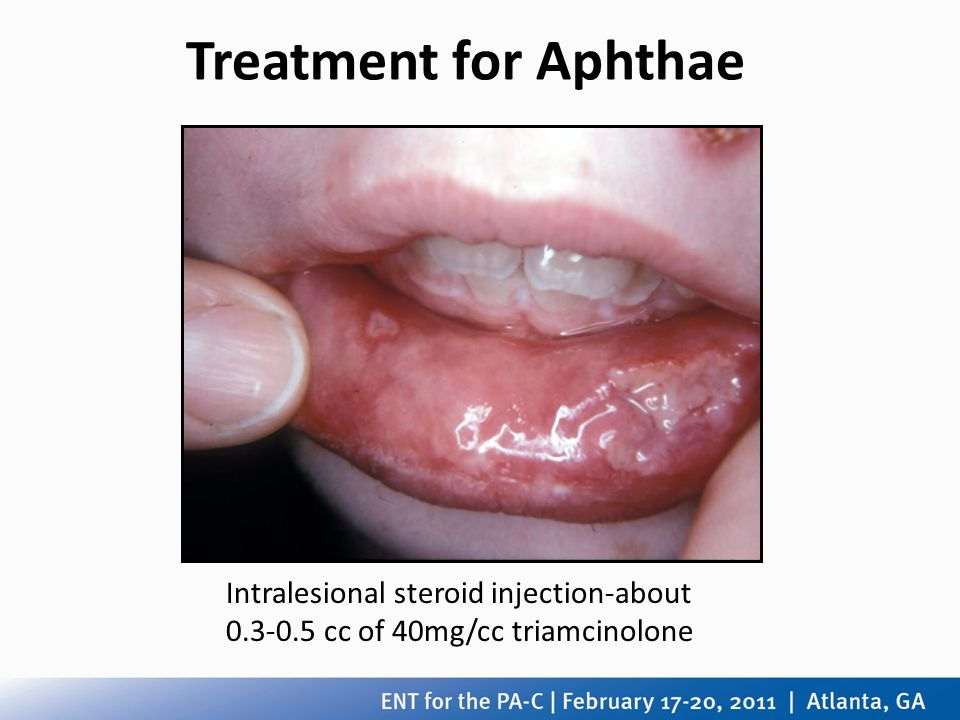 Treatment for Aphthae Intralesional steroid injection-about 0.3-0.5 cc of 40mg/cc triamcinolone
