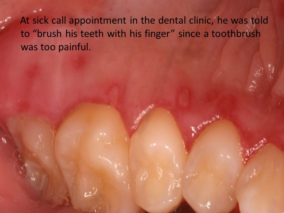 "At sick call appointment in the dental clinic, he was told to ""brush his teeth with his finger"" since a toothbrush was too painful."