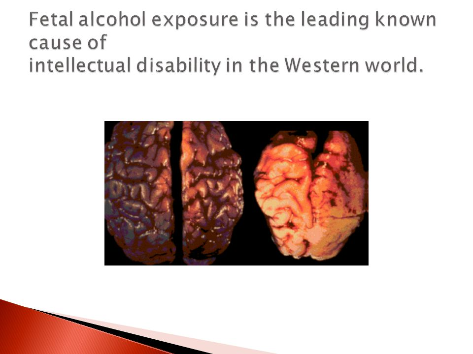 As the fetal brain develops throughout the whole pregnancy, children with Fetal Alcohol Spectrum Disorder often have permanent and irreversible brain injury as a direct consequence of alcohol consumed at any point in the pregnancy.