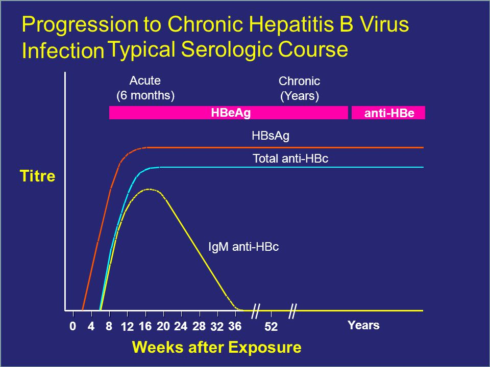 IgM anti-HBc Total anti-HBc HBsAg Acute (6 months) HBeAg Chronic (Years) anti-HBe 048 12 16202428 32 36 52 Years Weeks after Exposure Titre Progression to Chronic Hepatitis B Virus Infection Typical Serologic Course