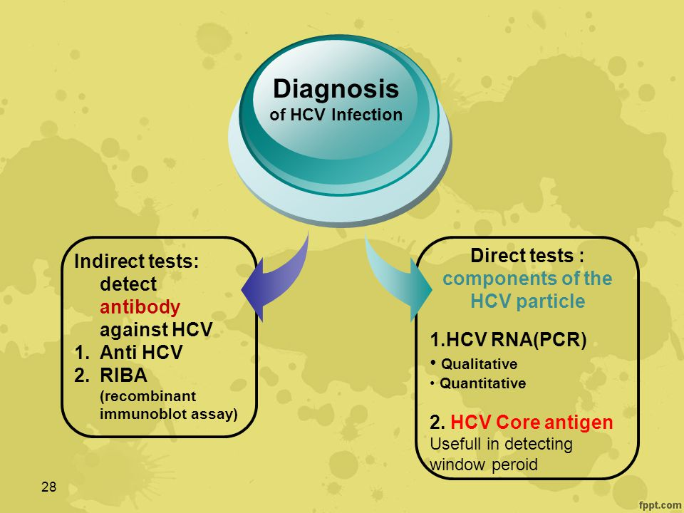 28 Indirect tests: detect antibody against HCV 1.Anti HCV 2.RIBA (recombinant immunoblot assay) Diagnosis of HCV Infection Direct tests : components of the HCV particle 1.HCV RNA(PCR) Qualitative Quantitative 2.