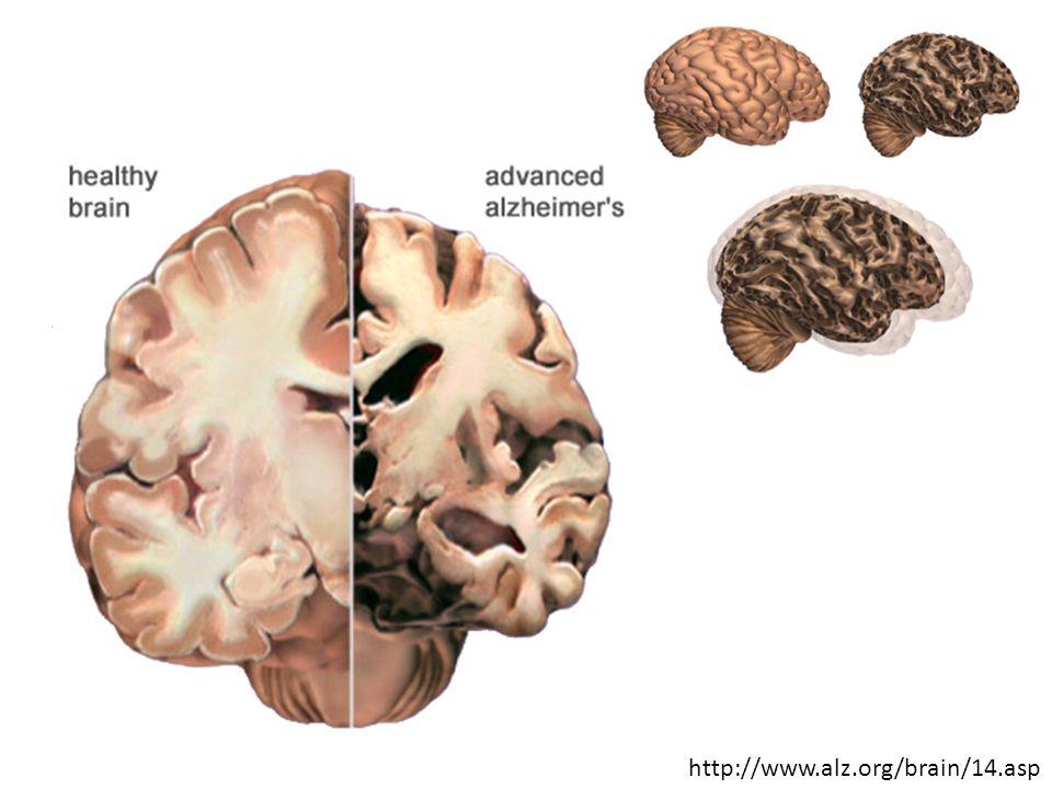 http://www.alz.org/brain/14.asp