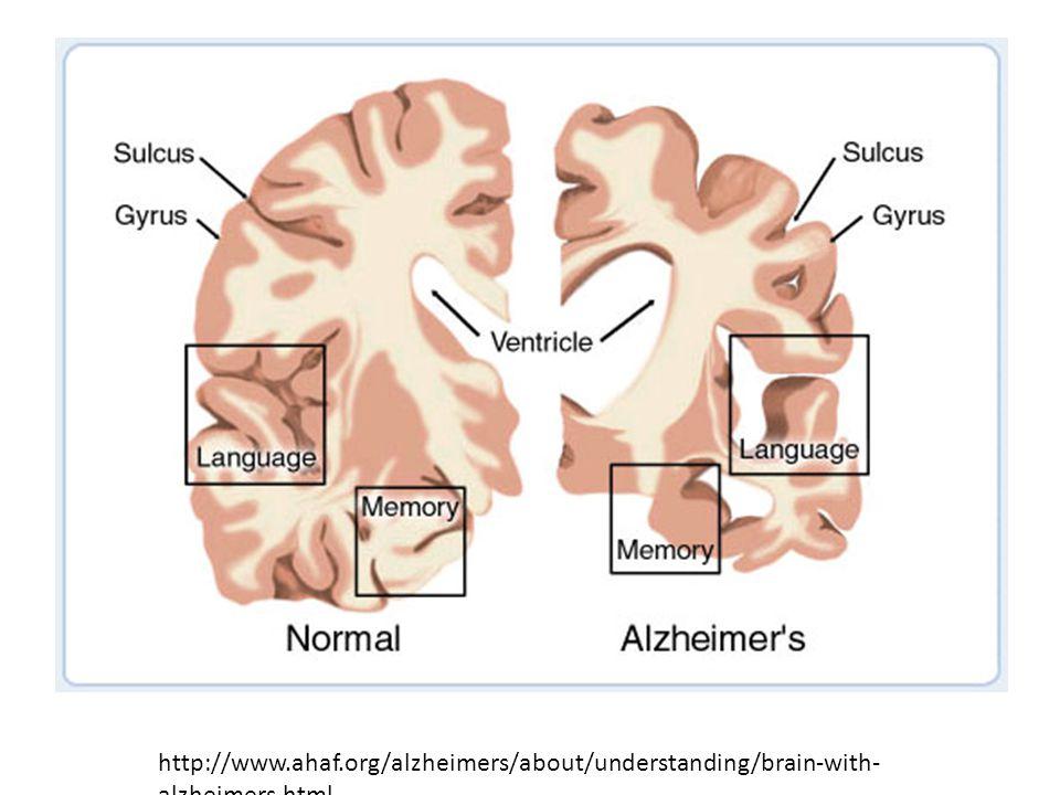 http://www.ahaf.org/alzheimers/about/understanding/brain-with- alzheimers.html