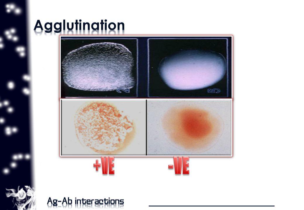 o immune-mediated hemolytic anemia.