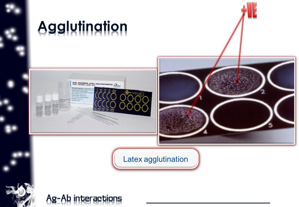 Ag Mg/ml Diameter /mm Sample Diameter Sample concentration oThis is precipitation reaction to test presence of entire subclass of immunoglobulin by applying specific antiglobulin forming a precipitation rings.