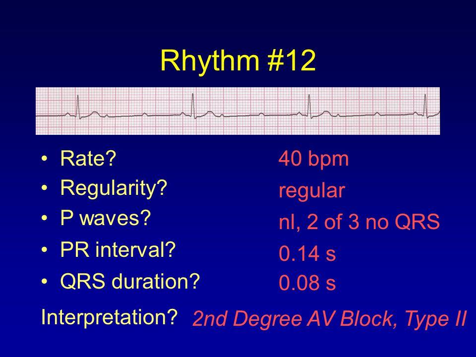 Rhythm #12 40 bpm Rate? Regularity? regular nl, 2 of 3 no QRS 0.08 s P waves? PR interval? 0.14 s QRS duration? Interpretation? 2nd Degree AV Block, T