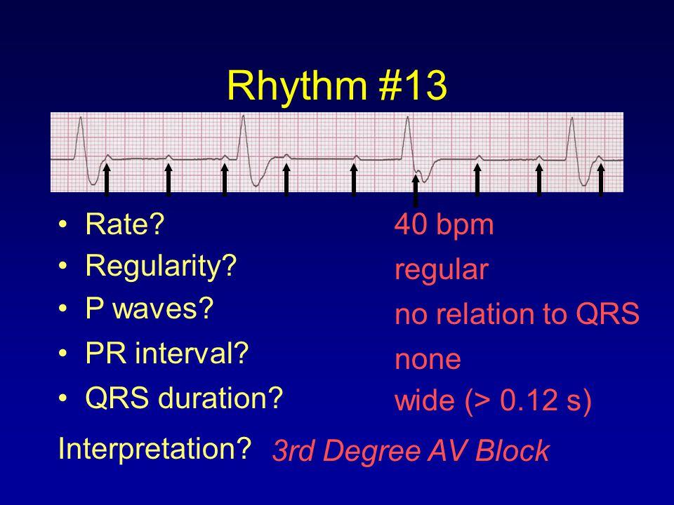 Rhythm #13 40 bpm Rate? Regularity? regular no relation to QRS wide (> 0.12 s) P waves? PR interval? none QRS duration? Interpretation? 3rd Degree AV