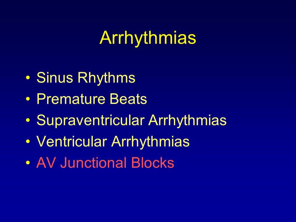 Arrhythmias Sinus Rhythms Premature Beats Supraventricular Arrhythmias Ventricular Arrhythmias AV Junctional Blocks