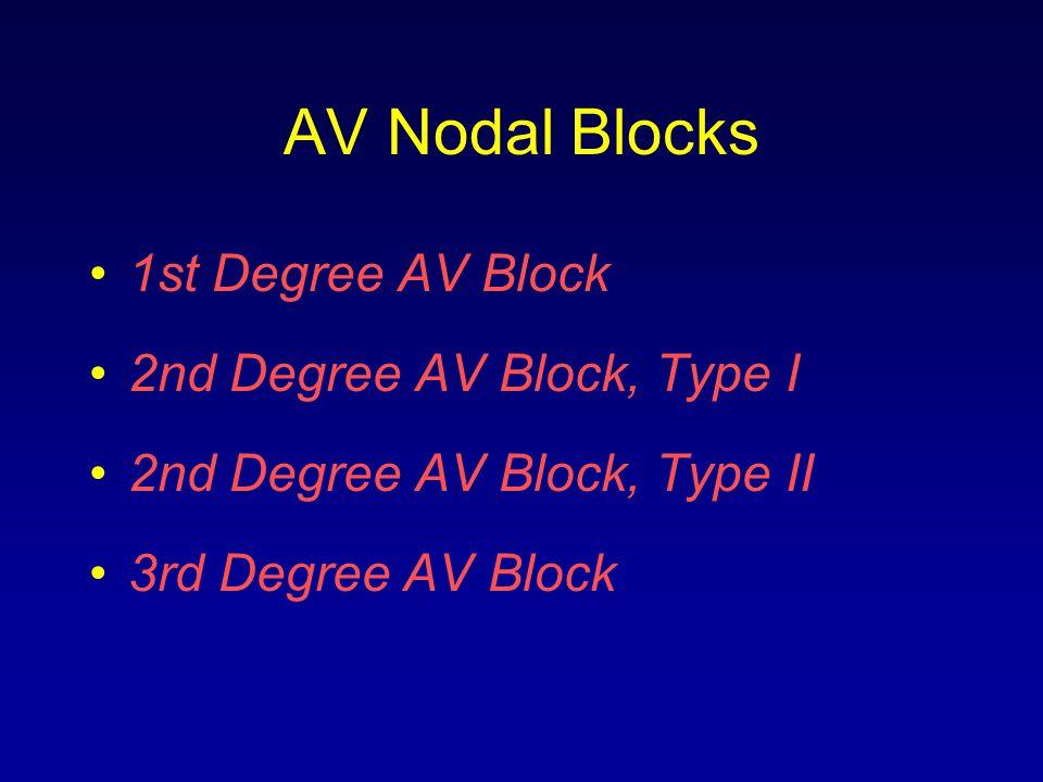 AV Nodal Blocks 1st Degree AV Block 2nd Degree AV Block, Type I 2nd Degree AV Block, Type II 3rd Degree AV Block