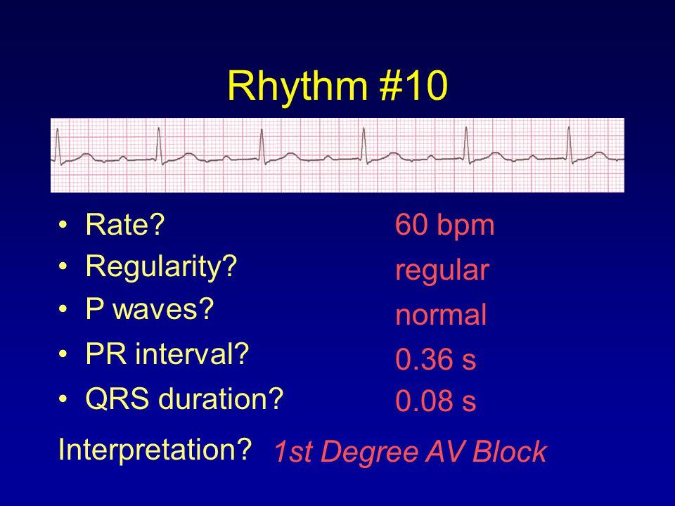 Rhythm #10 60 bpm Rate? Regularity? regular normal 0.08 s P waves? PR interval? 0.36 s QRS duration? Interpretation? 1st Degree AV Block