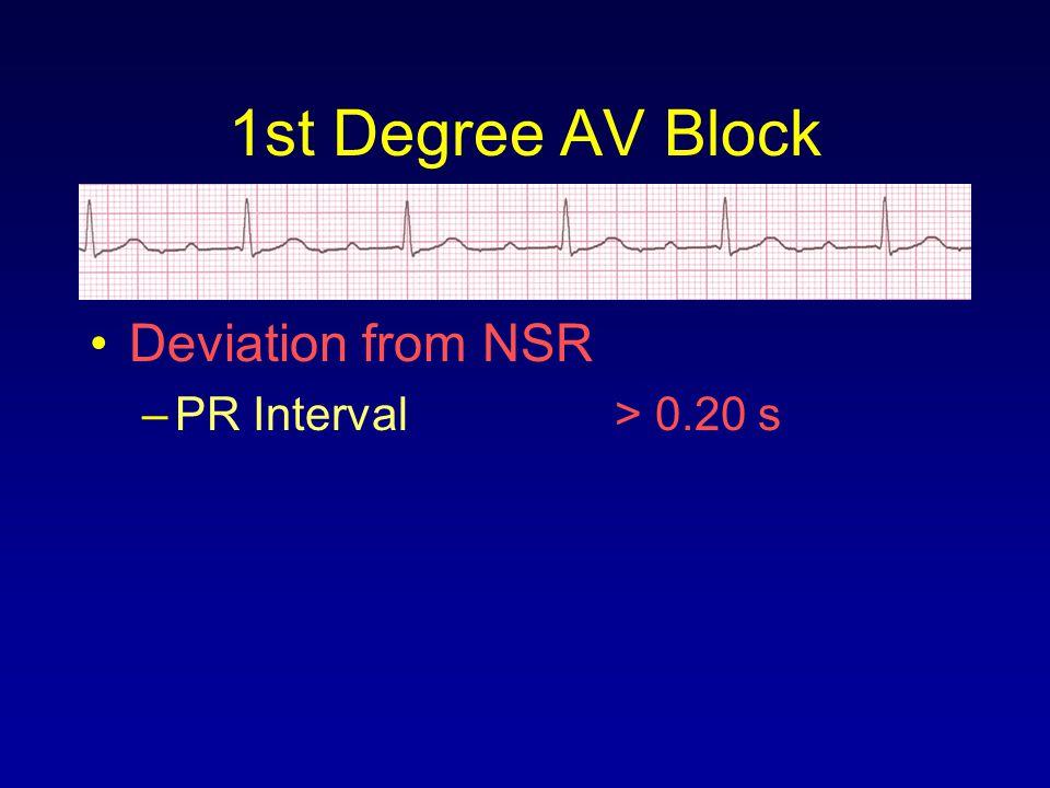 Deviation from NSR –PR Interval> 0.20 s