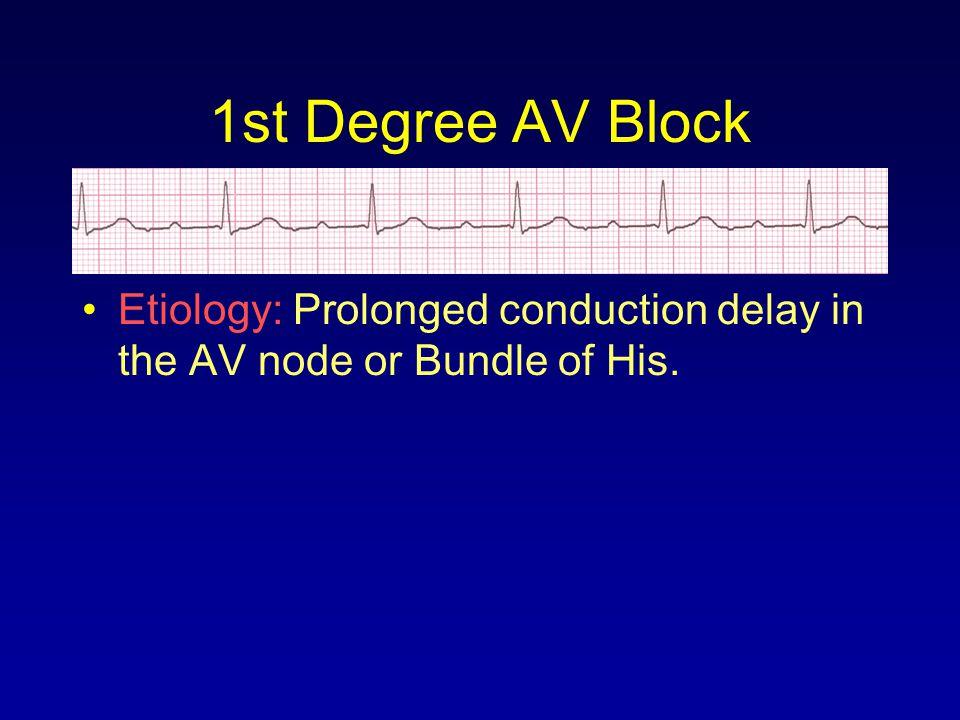1st Degree AV Block Etiology: Prolonged conduction delay in the AV node or Bundle of His.