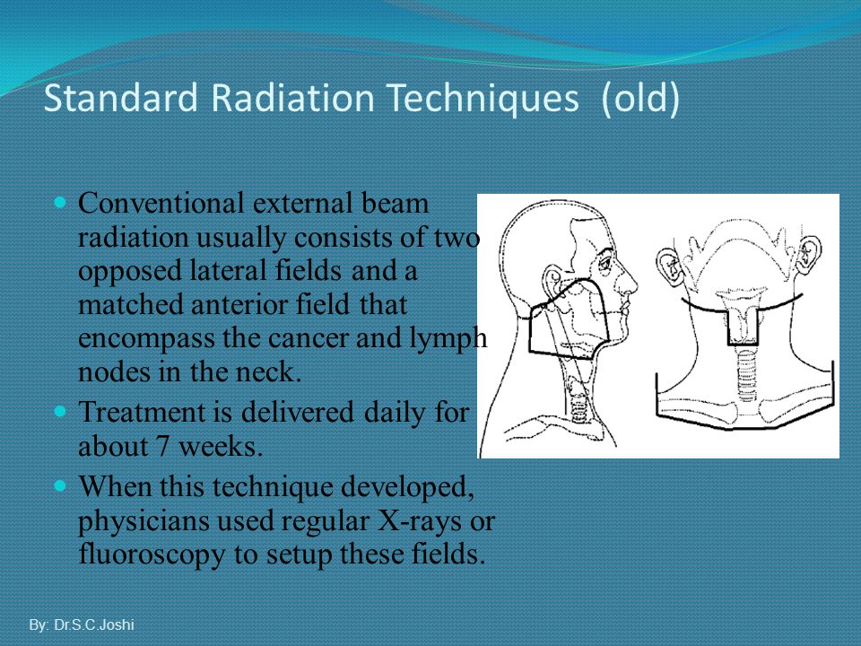 Standard Radiation Techniques (old) Conventional external beam radiation usually consists of two opposed lateral fields and a matched anterior field t