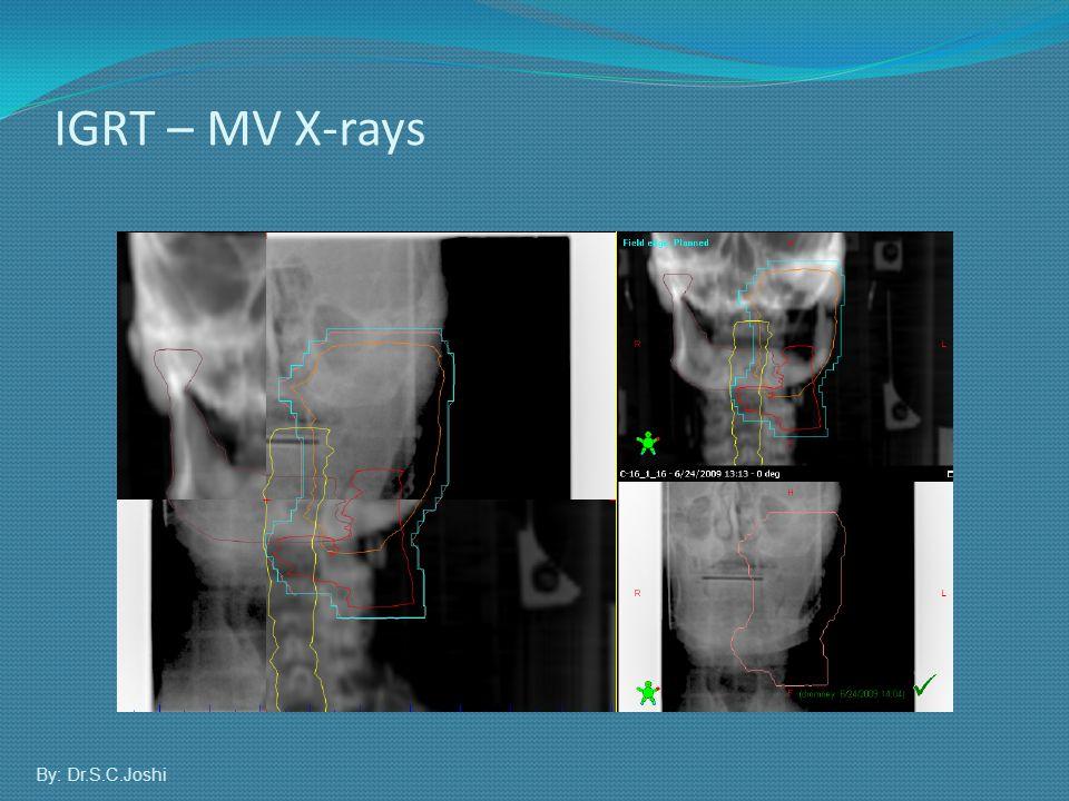 IGRT – MV X-rays By: Dr.S.C.Joshi