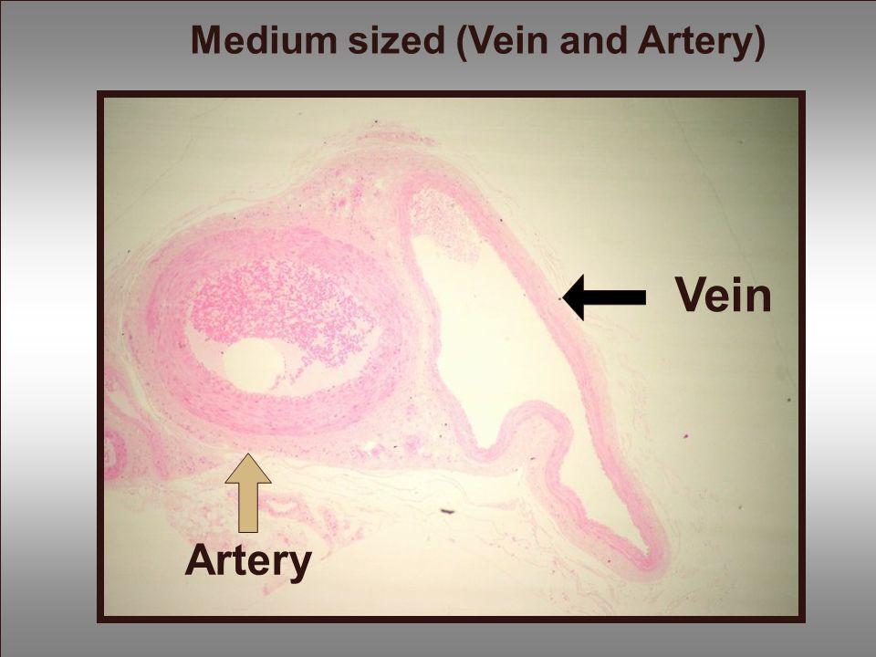 Vein Artery Medium sized (Vein and Artery)