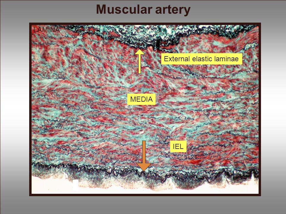 LAMINA MEDIA External elastic laminae IEL Muscular artery