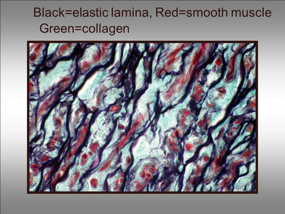 Black=elastic lamina, Red=smooth muscle Green=collagen