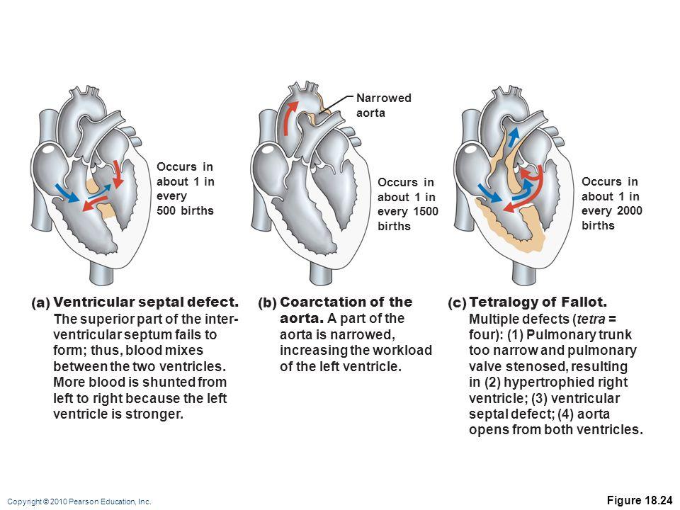Copyright © 2010 Pearson Education, Inc. Figure 18.24 Occurs in about 1 in every 500 births Occurs in about 1 in every 1500 births Narrowed aorta Occu