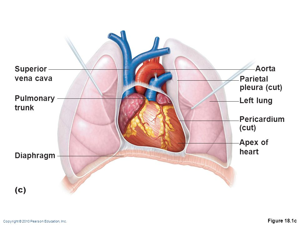 Copyright © 2010 Pearson Education, Inc.Why is high blood pressure damaging to the heart.