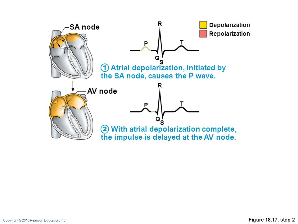 Copyright © 2010 Pearson Education, Inc. Figure 18.17, step 2 Atrial depolarization, initiated by the SA node, causes the P wave. P R T Q S SA node AV