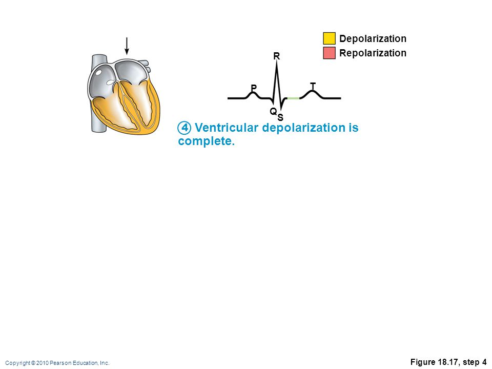 Copyright © 2010 Pearson Education, Inc. Figure 18.17, step 4 Ventricular depolarization is complete. P R T Q S Depolarization Repolarization 4