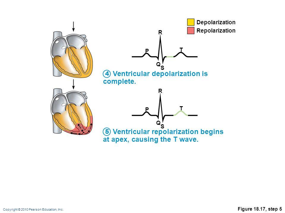 Copyright © 2010 Pearson Education, Inc. Figure 18.17, step 5 Ventricular depolarization is complete. Ventricular repolarization begins at apex, causi