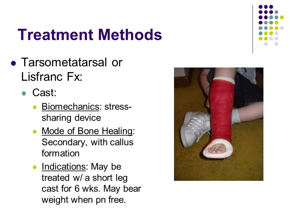 Treatment Methods Tarsometatarsal or Lisfranc Fx: Cast: Biomechanics: stress- sharing device Mode of Bone Healing: Secondary, with callus formation In