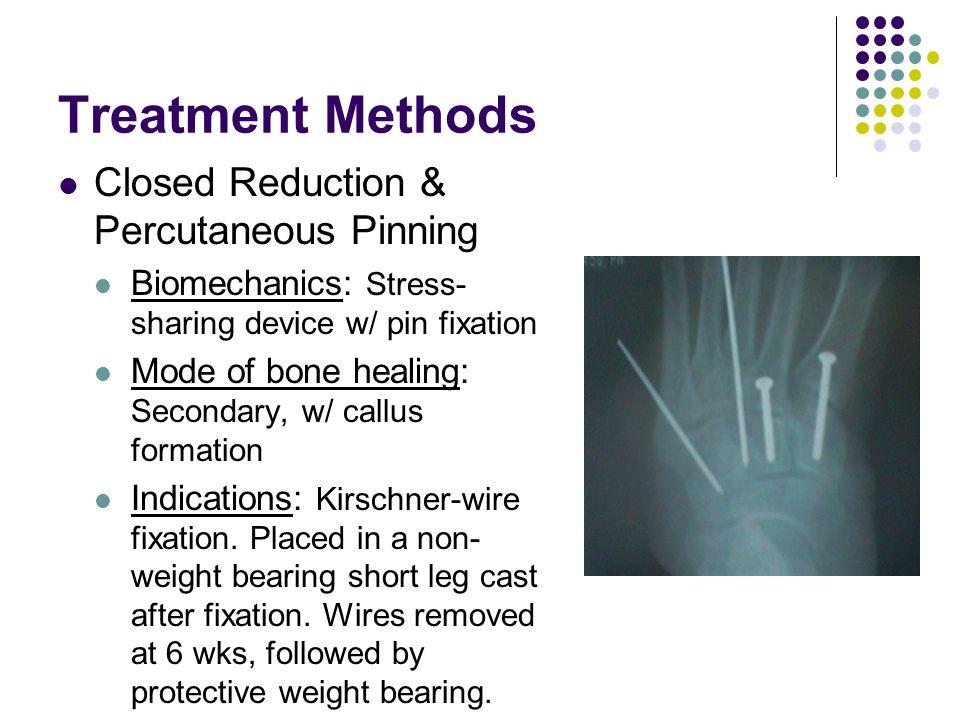 Treatment Methods Closed Reduction & Percutaneous Pinning Biomechanics: Stress- sharing device w/ pin fixation Mode of bone healing: Secondary, w/ cal