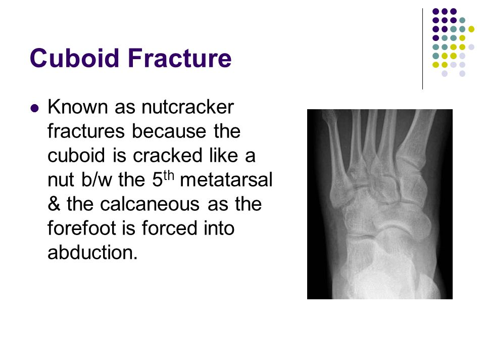 Cuboid Fracture Known as nutcracker fractures because the cuboid is cracked like a nut b/w the 5 th metatarsal & the calcaneous as the forefoot is for