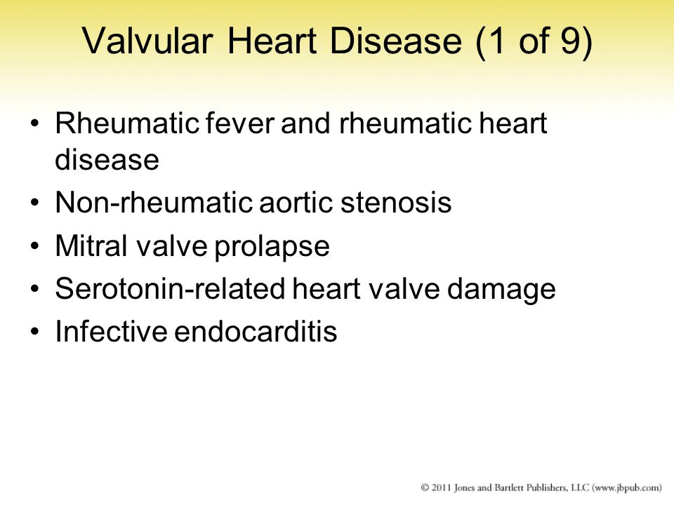 Valvular Heart Disease (1 of 9) Rheumatic fever and rheumatic heart disease Non-rheumatic aortic stenosis Mitral valve prolapse Serotonin-related hear