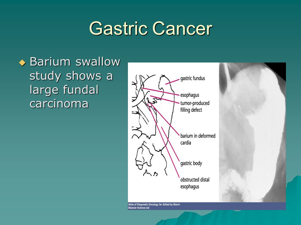  Barium swallow study shows a large fundal carcinoma