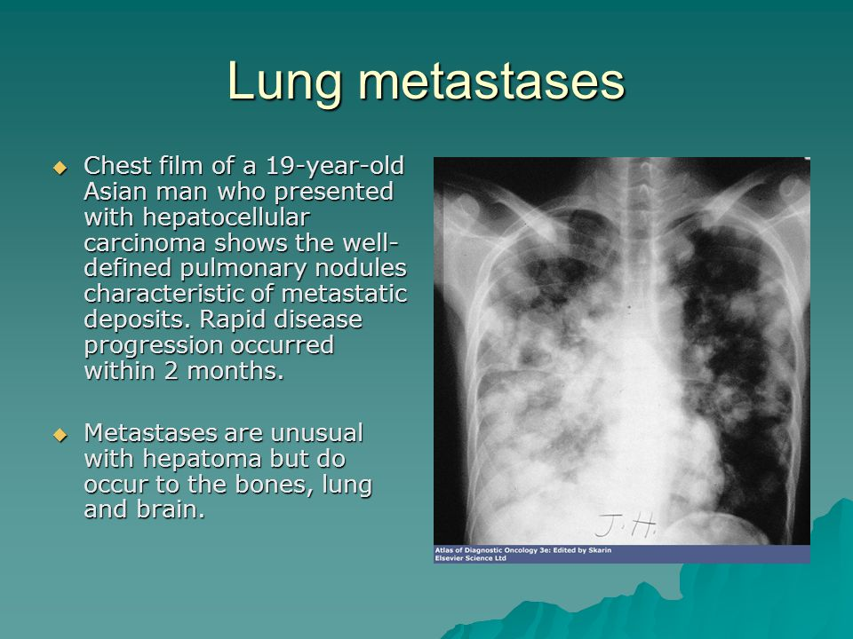 Lung metastases  Chest film of a 19-year-old Asian man who presented with hepatocellular carcinoma shows the well- defined pulmonary nodules characte