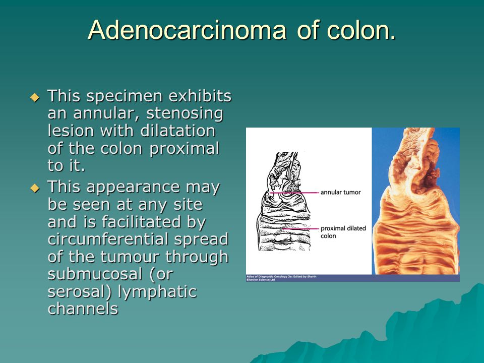 Adenocarcinoma of colon.  This specimen exhibits an annular, stenosing lesion with dilatation of the colon proximal to it.  This appearance may be s
