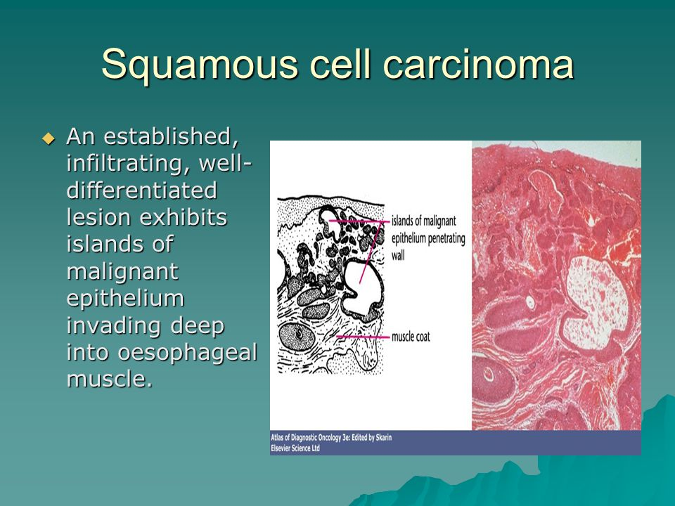 Squamous cell carcinoma  An established, infiltrating, well- differentiated lesion exhibits islands of malignant epithelium invading deep into oesoph
