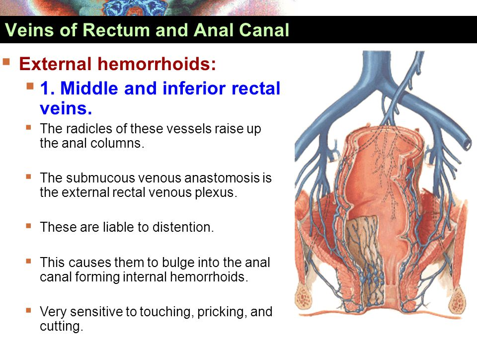 Veins of Rectum and Anal Canal  External hemorrhoids:  1. Middle and inferior rectal veins.  The radicles of these vessels raise up the anal column