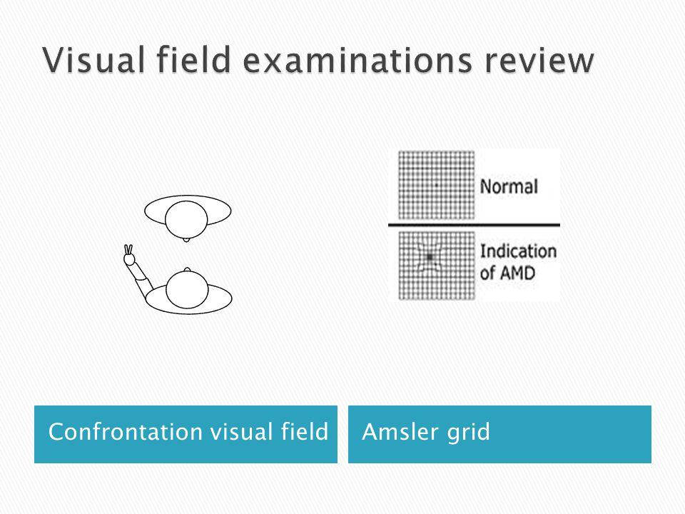 Confrontation visual fieldAmsler grid