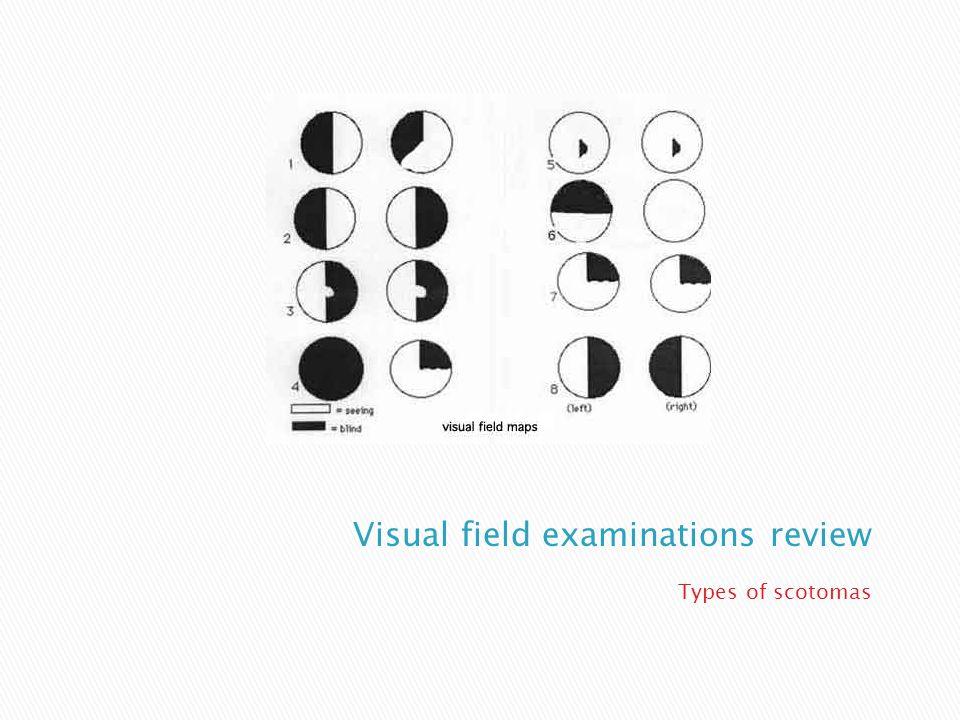 4 visual pathway zones  Monocular retinal zone  Nerve fiber/ optic nerve zone  Binocular chiasmal zone  Post chiasmal zone
