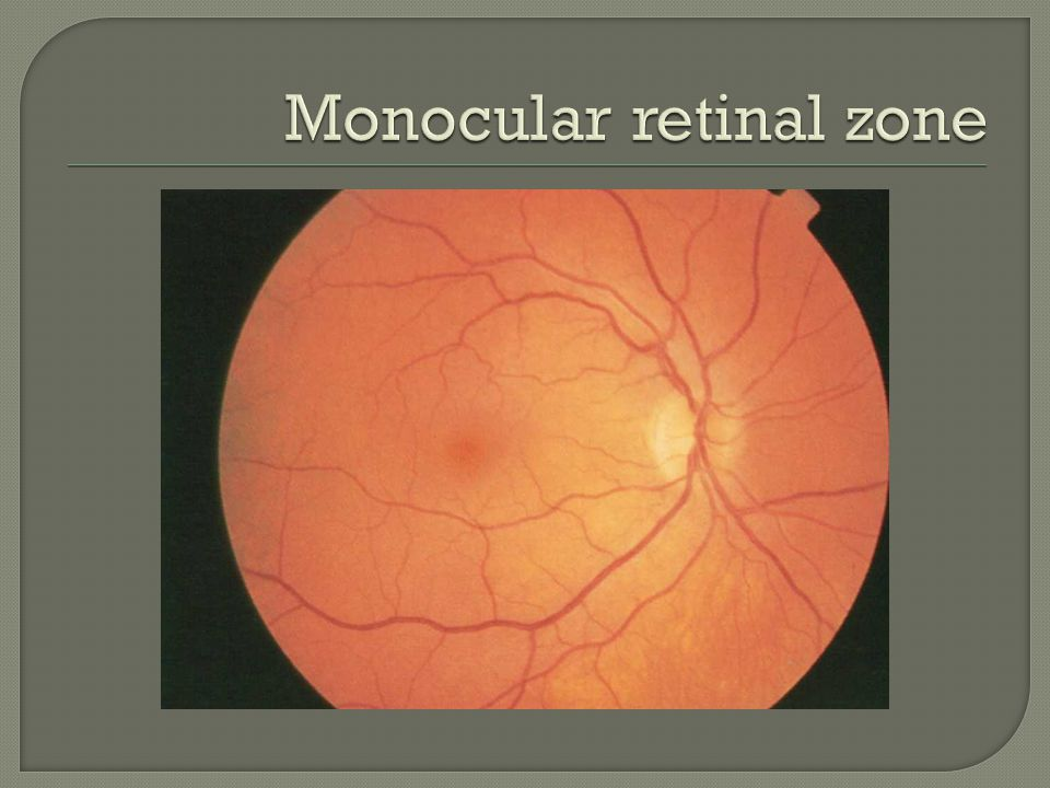  Macular and papillomacular defects create central or ceccocentral scotomas