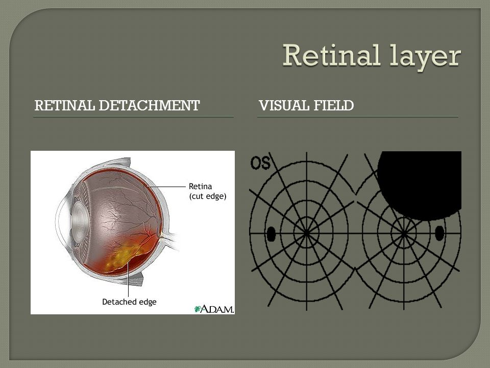  Choroidal lesions care caused by tumors, inflammations, infection, or fluid leaks.