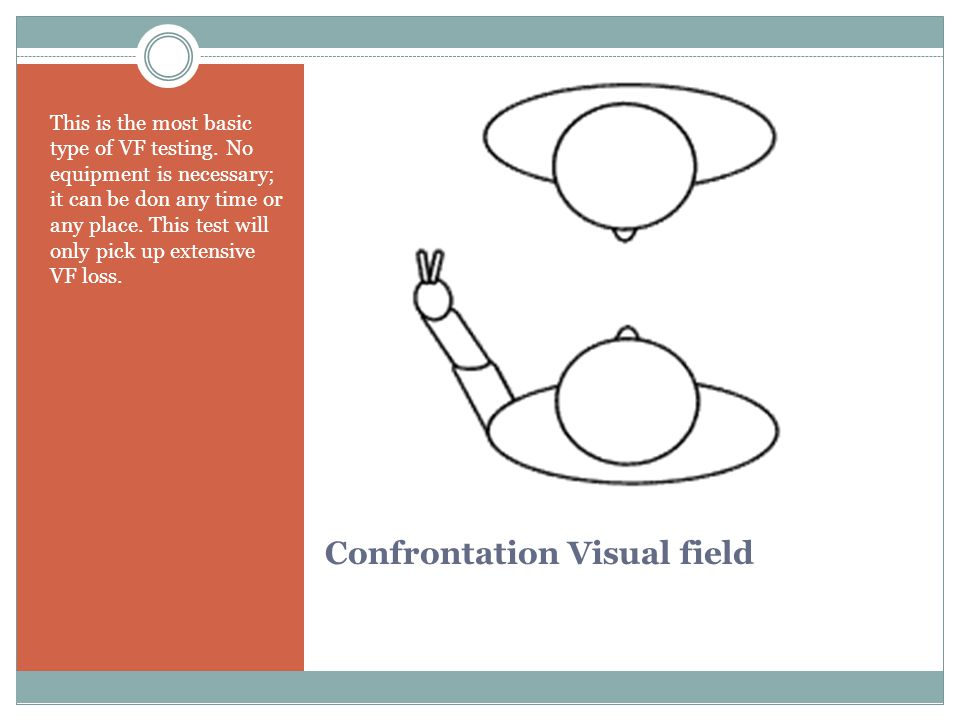 Confrontation Visual field This is the most basic type of VF testing.
