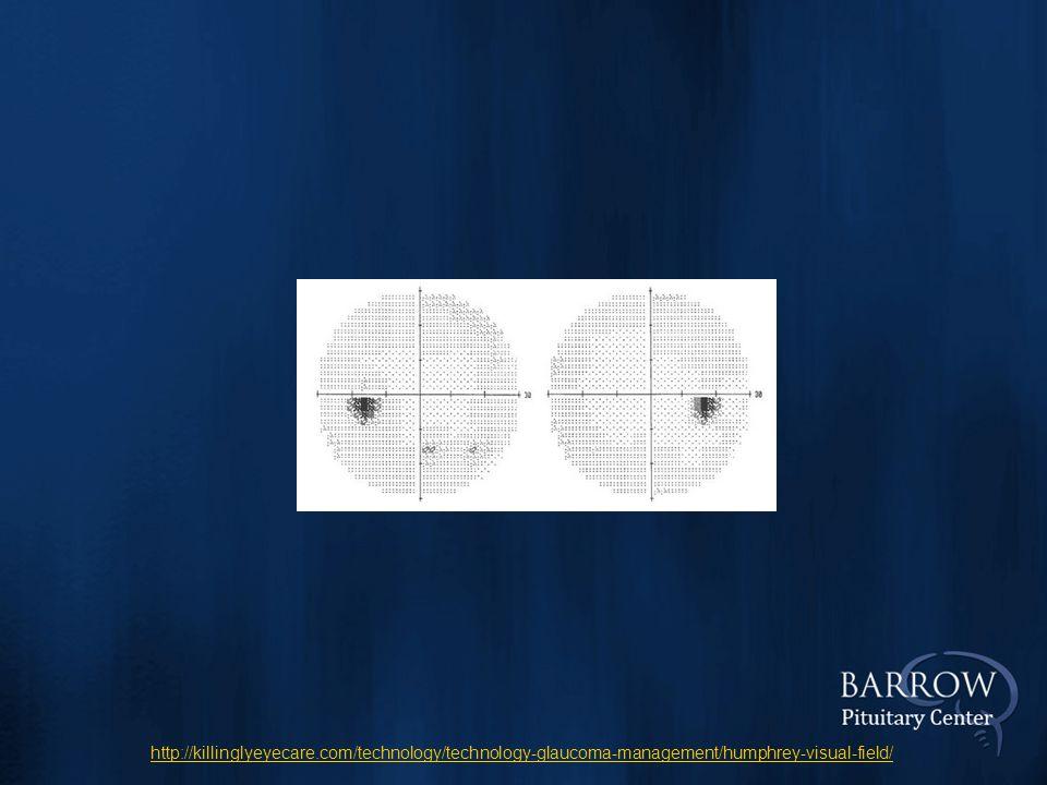 http://killinglyeyecare.com/technology/technology-glaucoma-management/humphrey-visual-field/