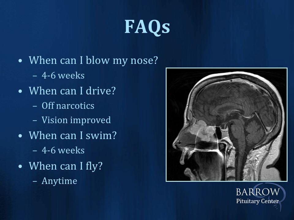 FAQs When can I blow my nose. –4-6 weeks When can I drive.