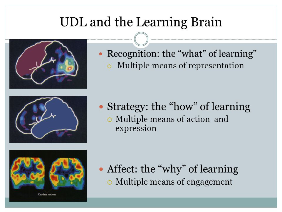 Recognition: the what of learning  Multiple means of representation Strategy: the how of learning  Multiple means of action and expression Affect: the why of learning  Multiple means of engagement UDL and the Learning Brain