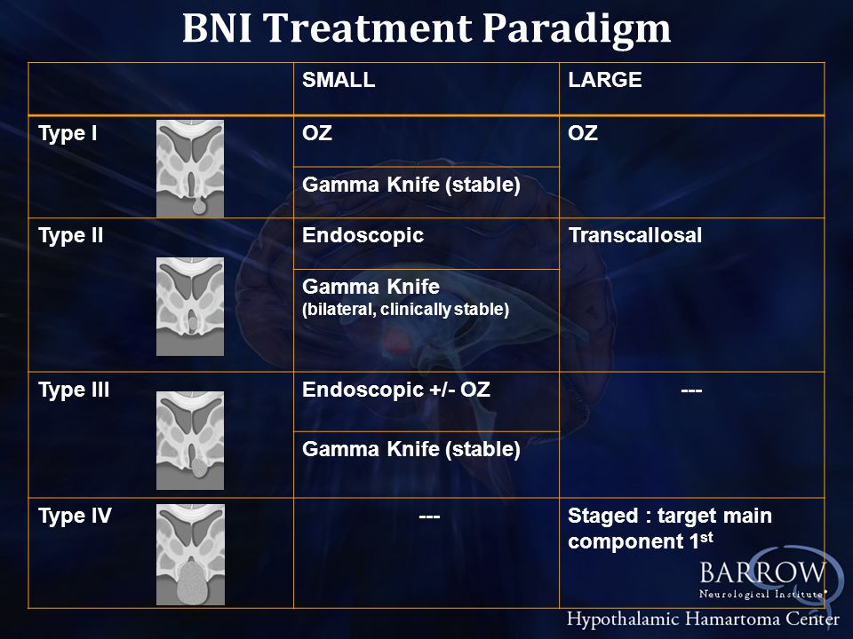 SMALLLARGE Type IOZ Gamma Knife (stable) Type IIEndoscopicTranscallosal Gamma Knife (bilateral, clinically stable) Type IIIEndoscopic +/- OZ--- Gamma Knife (stable) Type IV ---Staged : target main component 1 st BNI Treatment Paradigm